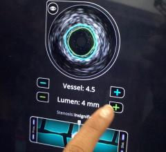 This is a view of the Level Ex IVUS training app to help users of Philips' intravascular ultrasound system. It is integrated into a percutenous coronary intervention (PCI) training app for mobile devices that allows interventional cardiologists to perform streamlined cath lab patient case simulations, including, iFR, angioplasty and stenting. #TCT2019