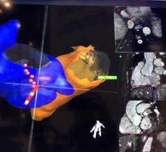 Imricor MRI-Guided Cardiac Ablation Study Results to Be Presented at HRS 2018