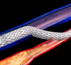 The LimFlow procedure permanently bypasses unreconstructable arteries and leverages healthier veins as a conduit to create new routes to perfuse tissue in the foot.  #VIVA #VIVA19 #VIVA2019