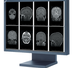 NEC Display Solutions of America Flat Panel Displays RSNA 2012 MultiSync MD211G3