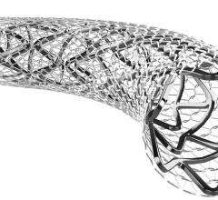 InspireMD's MicroNet embolic protection mesh on stents is designed to prevent emboli during carotid stenting.