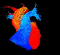 Stress Cardiac MRI Shows High Prognostic Value for Suspected Ischemia Patients