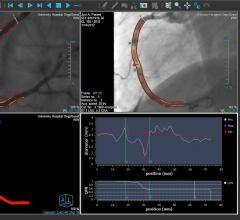 An example of the Medis QCA angiography imaging derived fractional flow reserve (FFR) assessment. This technology removes the need for pressure wires and adenosine used in traditional FFR assessments of the coronary arteries.