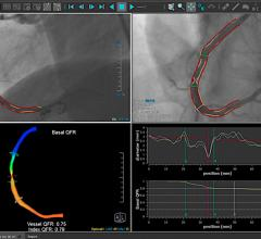 The Medis Quantitative Flow Ratio (QFR) is a novel, non-invasive, angiography-based physiologic FFR-like assessment of the presence and extent of coronary artery disease.