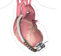 FDA Class I Recall Issued for Medtronic HeartWare HVAD Pump