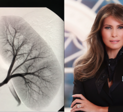 U.S. First Lady Melania Trump Undergoes Interventional Radiology Embolization Procedure