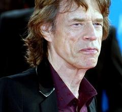 Mick Jagger Recovering After TAVR Procedure