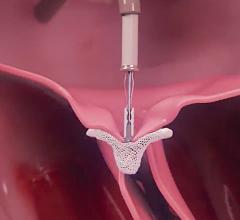 A new CMS national coverage determination for reimbursement for MitraClip significantly expand access to transcatheter mitral valve repair procedures for secondary mitral regurgitation.
