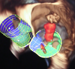 Direct Flow Medical, transcatheter mitral valve, preclinical case