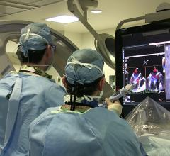 Transesophageal echo (TEE) being used to guide the deployment of a MitraClip device during a transcatheter structural heart procedure in the hybrid lab at the University of Colorado Hospital. The center has performed more than 200 MitraClip mitral valve repairs over the past decade. Photo by Dave Fornell