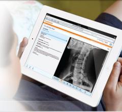 Carestream MyVue Patient Portial PACS Accessories