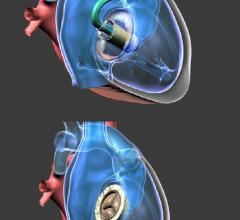Gate Bioprosthesis Used in Canada's First Transcatheter Valve Replacement for Tricuspid Regurgitation
