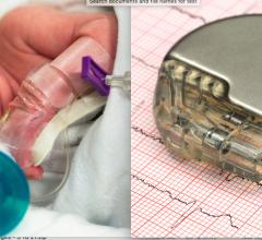 Neonates and young pediatric patients with congenital heart disease have few options for implantable electrophysiology (EP) devices like pacemakers or ICDs.