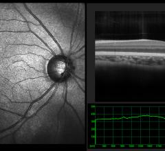 Ophthalmic optical coherence tomography (OCT) scan view of the macula in retina with vessels. Detecting heart disease with OCT imaging of the eye.Getty Images