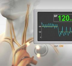 The Orchestra BioMed BackBeat Cardiac Neuromodulation Therapy (CNT) system is implanted similar to a pacemaker to stimulate thesympathetic nerves to help reduceblood pressure.