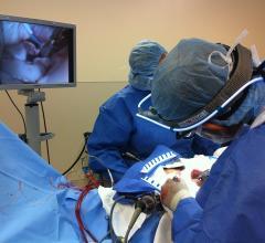 CardiAQ, TMVI, FDA, IDE, feasibility study, mitral valve, Beth Israel Deaconess