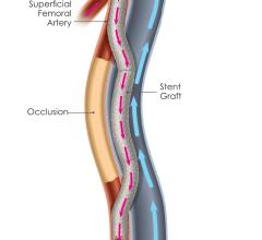 PQ Bypass Effective in Treating Extremely Long SFA Lesions at 12 Months
