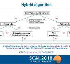 PROGRESS-CTO flow chart for the hybrid algorithm. #SCAI, #SCAI2018