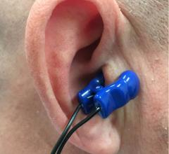 The Parasym Salustim device ear clip stimulates the vagus nerve, which was found to reduced AF burden compared with a sham procedure in the TREAT AF trial.