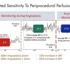 The Pedra Blood Perfusion Index tracks real-time changes in foot tissue perfusion attendant with balloon inflation and deflation during an angioplasty procedure.