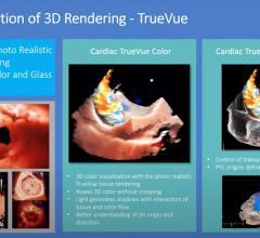 WEBINAR: 3-D Multi-planar Imaging to Enhance Ultrasound Guidance of Interventional Cardiac Proceduresusing Philips Technology.