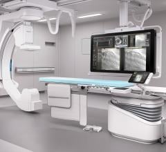 Philips Azurion Platform Improves Clinical Workflow and Staff Experience Benefits