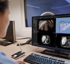 Philips Introduces IntelliSpace Portal 11 at ECR 2019