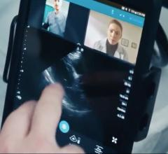 Philips Integrates Reacts Tele-Ultrasound Platform on Lumify Portable Systems