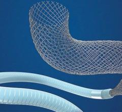 Medtronic is recalling its Pipeline Flex Embolization Device and Pipeline Flex Embolization Device with Shield Technology, which are transcatheter devices used to seal brain aneurysms. The company said there is a risk of the delivery system's wire and tubes fracturing and breaking off when the system is being used to place, retrieve, or move the stent inside a patient.