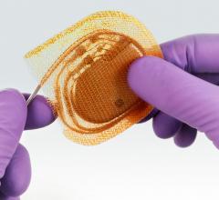 Tyrex AigisRx Antibacterial Envelope EP Lab Pacemakes ICD