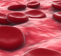 Researchers Develop Reversible, Drug-Free Antiplatelet Therapy