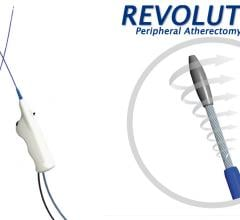 The Rex Medical Revolution rotational atherectomy system incorporates continuous aspiration and has a dual indication for atherectomy and thrombectomy.  #VICA19 #VIVA2019