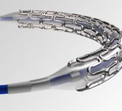 The Indian-made SMT SuperFlex stent. SMT has been developing stents and other interventional products designed to be a more affordable, home-grown option for the growing Indian market.