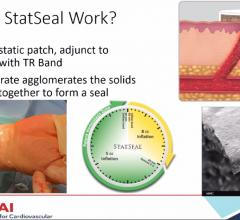 The STAT2 trial used a combination of the Biolife Statseal potassium ferrate hemostatic patch and a Terumo TR Band to reduce radial access arteriotomy site hemostasis by 50 percent.