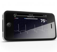 ecg software mobile devices alivecor heart monitor university san francisco