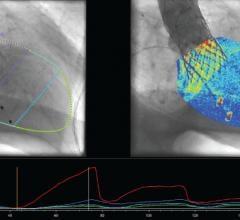 Pie Medical Imaging, CAAS A-Valve, qRA, angiography, heart valve repair