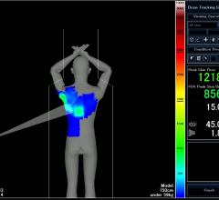 Toshiba radiation dose monitoring