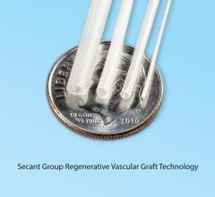 Secant Introduces First Synthetic Regenerative Cardiovascular Graft for CABG