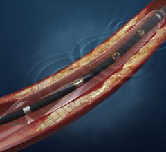 Shockwave Launches Coronary Intravascular Lithotripsy in Europe