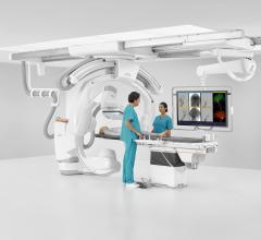 Mentice and Siemens Healthineers Integrate VIST Virtual Patient With Artis Icono Angiography System