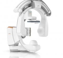 The Artis icono biplane angiography system is designed for use in neurointerventions and interventional radiology
