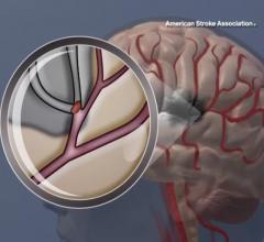 JAMA, intracranial arterial stenosis, balloon expandable stents, medication