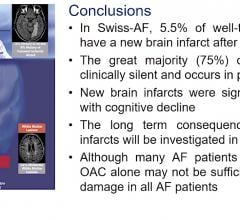 The Swiss-AF study shows High Incidence Of Silent Brain Infarcts Found in Anticoagulated Atrial Fibrillation Patients. #Heartrhythm2020 #HRS20 #HRS2020