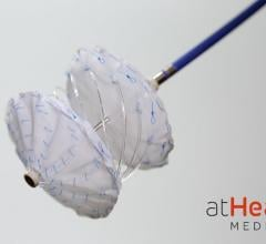 The reSept ASD Occluder is the first structural heart occluder with a metal-free, bioresorbable frame. The novel implant is designed to overcome the limitations of current transcatheter occluders. It is hoped the design will reduce the risk of complications associated with the long-term presence of metal in the heart and to preserve future treatment options requiring transseptal intervention.