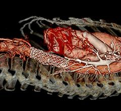 Thoracic abdominal aortic stent graft used to treat  Type B aortic dissections (TBAD). The STS and SVS released new reporting standards for TBAD.