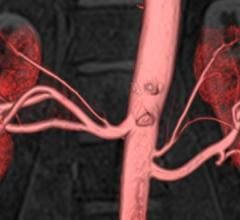 Clinical trial, MRI system, Peripheral Artery Disease, Renal Artery Stenosis