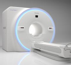 Toshiba Vantage Galan 3T XGO Edition MRI Features New Advanced Gradient