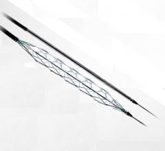 Transit Scientific announced the U.S. Food and Drug Administration (FDA) cleared the XO Score Percutaneous Transluminal Angioplasty (PTA) Scoring Sheath platform for use in iliac, ilio-femoral, popliteal, infra-popliteal and renal arterial plus synthetic and/or native arteriovenous hemodialysis fistula. This is a new type of scoring balloon technology.