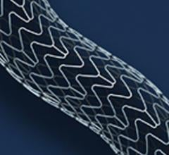 xience prime xpedition V antiplatelet stents eluting clinical trial study cath