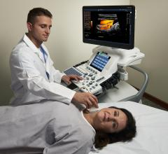 BioImage-2 Study to Investigate Atherosclerotic Disease Progression